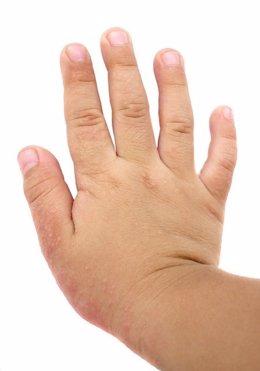 Dermatitis atópica en la mano de un niño.