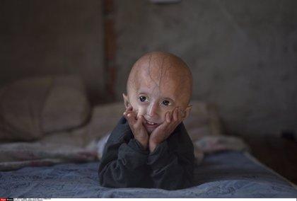 Un novedoso tratamiento con lonafarnib prolonga la supervivencia en niños con progeria