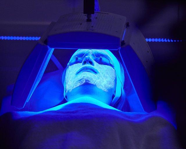Terapia que combate el acné