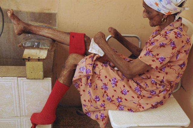La lepra aún existe en 115 países según la OMS