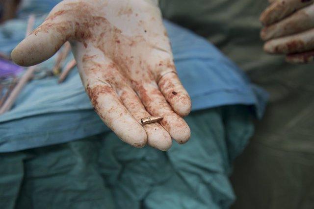 Bala retirada del abdomen de una mujer en la Franja de Gaza