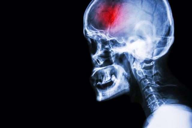 Ictus, accidente cerebrovascular