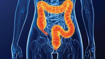 Añadir un colorante azul a la colonoscopia podría mejorar la detección temprana del cáncer colorrectal