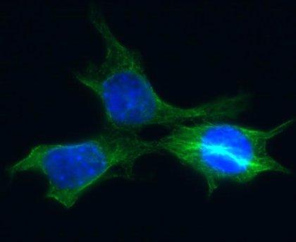 Las células tumorales evitan la muerte a través de la reparación in extremis del ADN