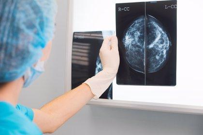 Hasta un 70% de las pacientes con cáncer de mama más común podrían no necesitar quimioterapia
