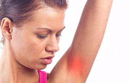 La hidrosadenitis supurativa, cada vez más importante, ¿por qué?