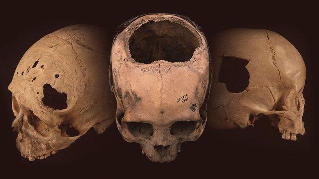 Antiguos cráneos con evidencia de trepanación