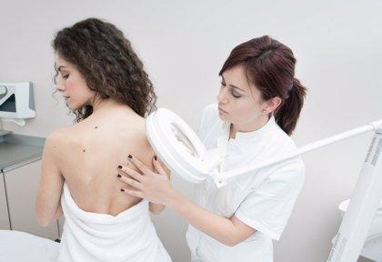 El ABCDE de los lunares: cuándo acudir al dermatólogo