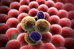 Éxito del ensayo clínico de un fármaco en pacientes con un tipo de cáncer de mama metastásico (GETTY//UGREEN - Archivo)