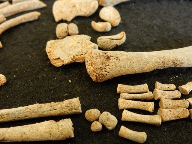 Huesos de individuo con sífilis