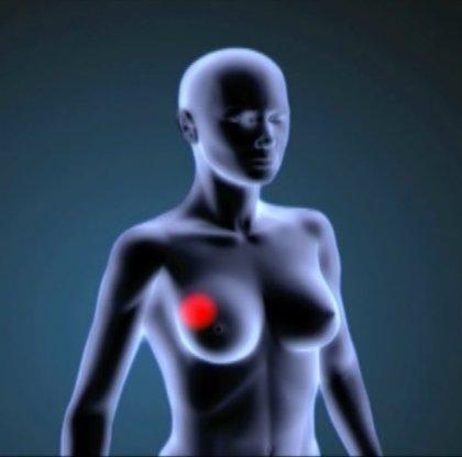 Un índice de masa corporal alto puede estar vinculado a menor riesgo de cáncer de mama