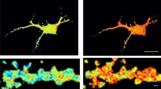 Agregados amiloides alteran la función neuronal en el Alzheimer