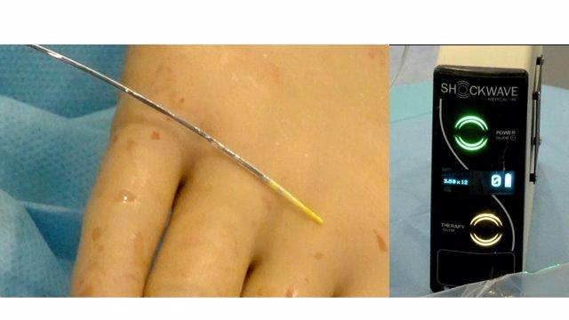 Ondas de choque para tratar estenosis en arterias coronarias calcificadas