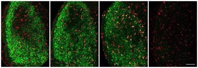 Identifican las neuronas esponsables de eliminar las dañadas en una lesión