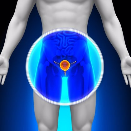 Hallan dos biomarcadores que podrían servir para el tratamiento personalizado del cáncer de vejiga