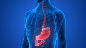 Reducción de estómago sin cirugía: una oportunidad ideal para pacientes con diabetes tipo 2 o con hígado graso (GETTY IMAGES/ISTOCKPHOTO / MAGICMINE - Archivo)
