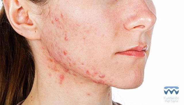 Acné. Mujer con acné. Granos. Pus