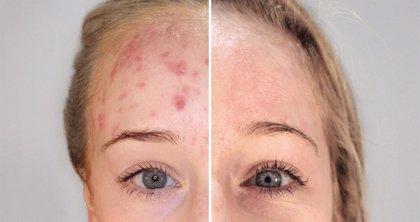 Beneficios de la terapia biofotónica para el tratamiento del acné en la mujer madura