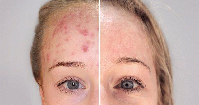 Terapia biofotónica para el tratamiento del acné en la mujer madura