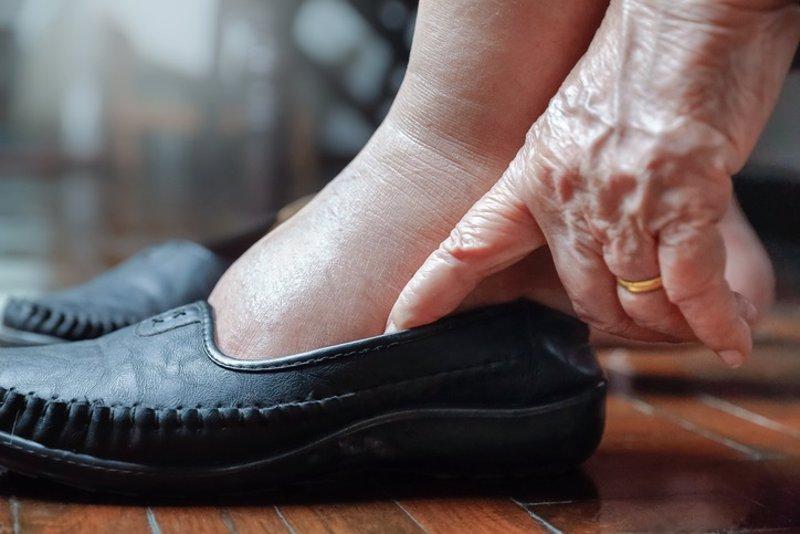 Cómo remediar los edemas en las personas mayores