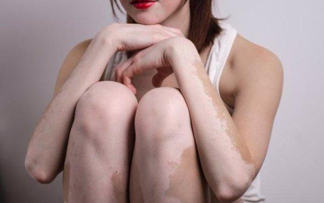 Investigan un nuevo tratamiento para revertir los síntomas del vitíligo