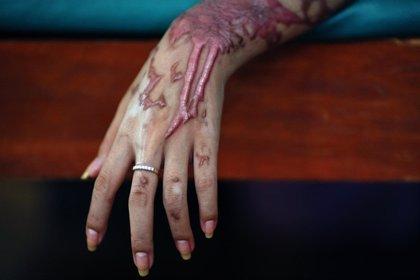 Imputados cinco hombres por un supuesto ataque con ácido contra un niño de tres años en Reino Unido