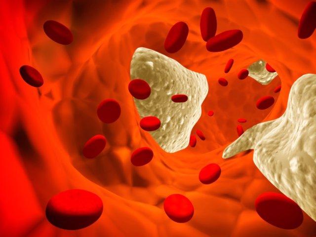 Aterosclerosis, Trombosis, venas