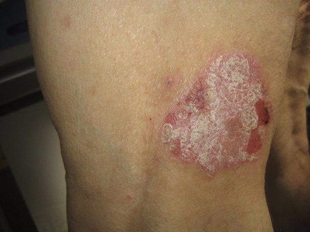 Lesión de psoriasis