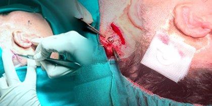 Implantan una prótesis de titanio en el cráneo de un paciente que permite audición por estimulación del hueso