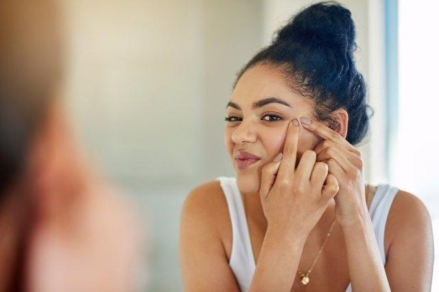 Granos, acne, puntos negros, belleza, cara, espejo