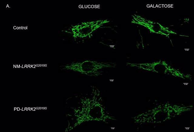 Gráfico del reto mitocondrial con Glucosa y Galactosa