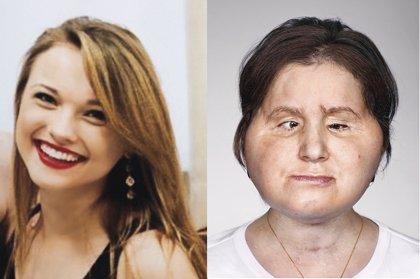 Katie Stubblefield, la receptora de trasplante facial más joven del mundo