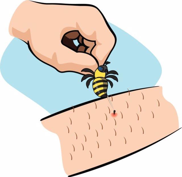 Picadura de insecto