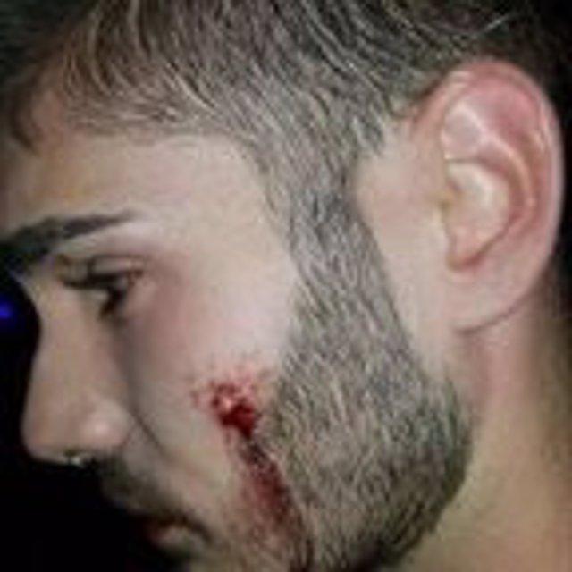 El chico agredido en una discoteca