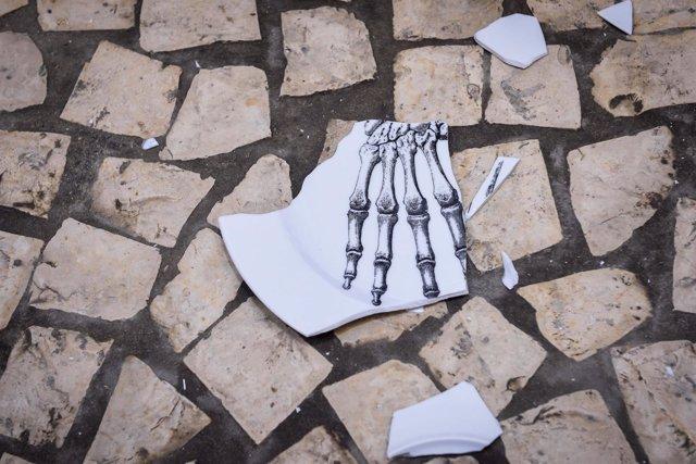 Plato roto por la osteoporosis