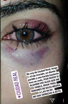 Chica agredida por joven en Ciudad Real