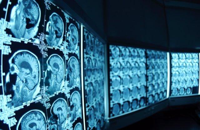 Cerebro, prueba, radiografía