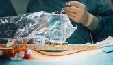 Foto: ¿Cómo trabaja un robot en quirófano?