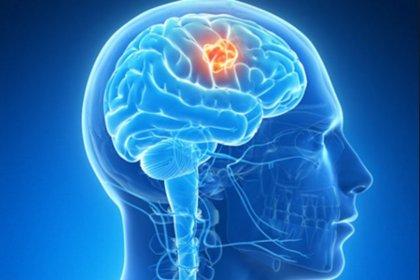 """Descubren el secreto de la """"inmortalidad"""" del cáncer cerebral mortal"""