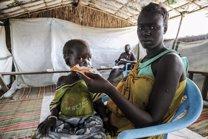 Niño con desnutrición en Sudán del Sur