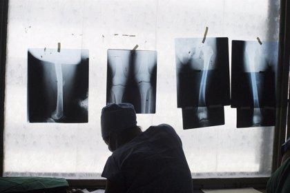En qué casos están contraindicadas las radiografías