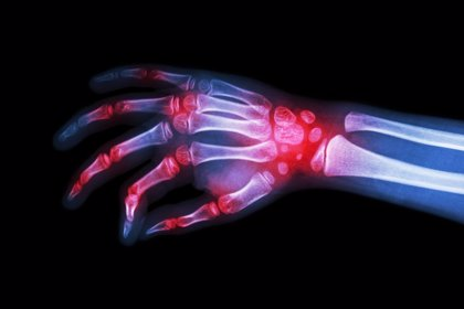 AbbVie lanza el proyecto 'ECHOS' formar a reumatólogos en el uso de la ecografía en la artritis reumatoide
