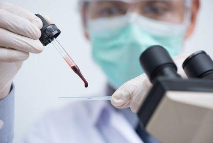 Un análisis del ADN liberado en sangre y semen permitirá determinar anomalías en los espermatozoides