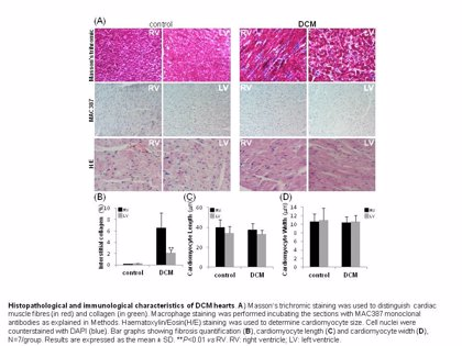Identifican biomarcadores asociados con cambios en los ventrículos en enfermedad cardiovascular