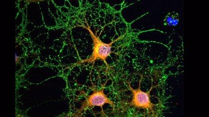 Un estudio incide en el papel del sistema cannabinoide en la reparación del daño neuronal
