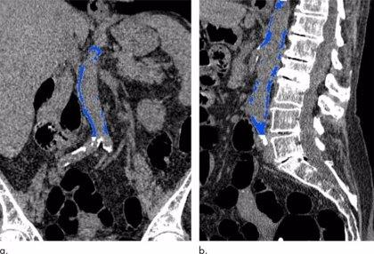 La calcificación aórtica abdominal puede indicar un ataque cardiaco futuro