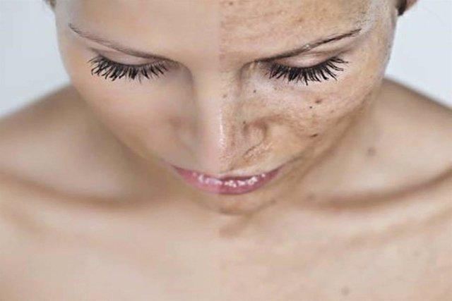 El melasma o manchas en la piel