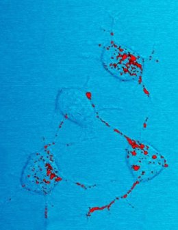 Células nerviosas de ratón con priones (en rojo)