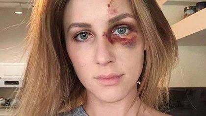 Así quedo la cara de esta joven brasileña después de una brutal paliza de su novio por publicar una foto en tirantes