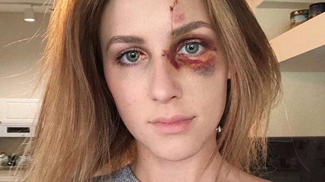 Mujer agredida por su novio